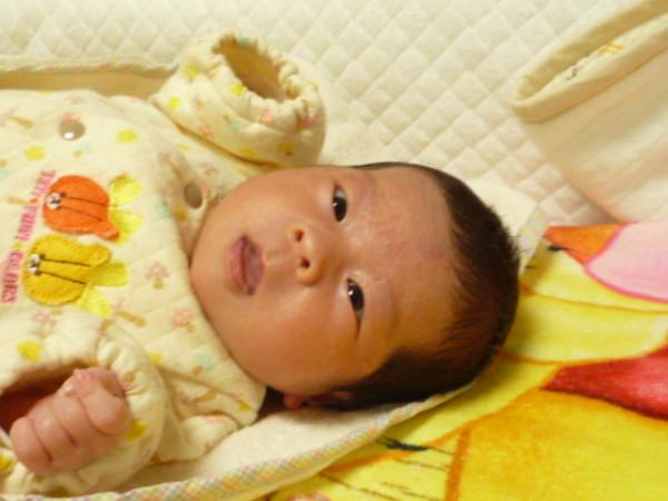 赤ちゃん生後1か月 乳児湿疹画像